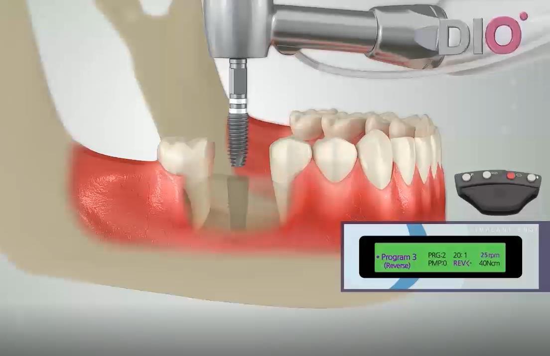 种植手术流程的3D动画演示