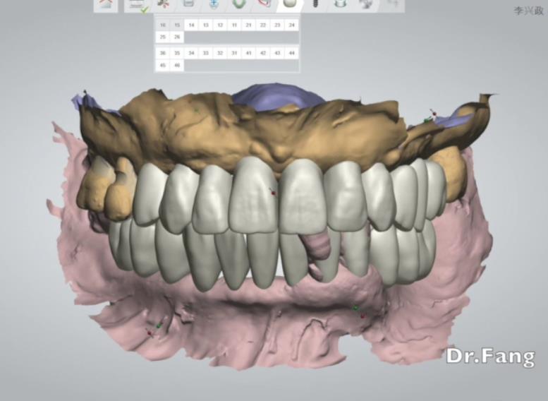 原始义齿咬合高度复制方法