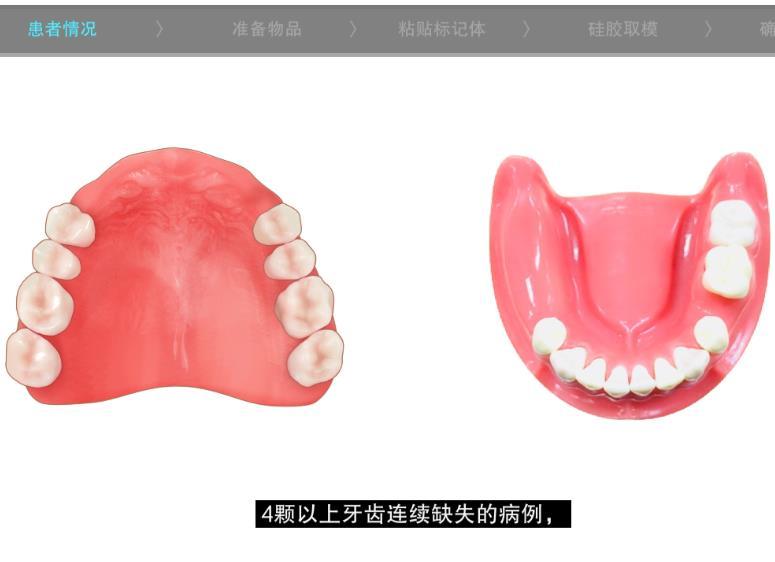 4颗以上牙齿连续缺失 - 硅胶取模